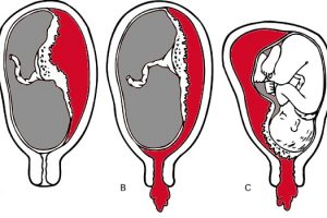 nguy co me bau gap phai khi mang thai