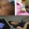 15 dấu hiệu báo người mẹ có nguy cơ sinh con dị tật cao