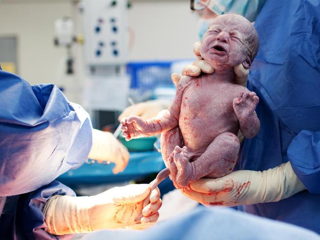 tường tận quá trình sinh nở-Sắt bà bầu chela ferr forte