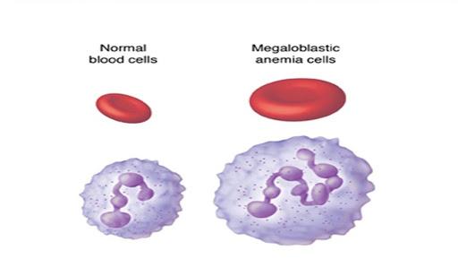 Bà bầu thiếu máu hồng cầu khổng lồ có nguy hiểm không?