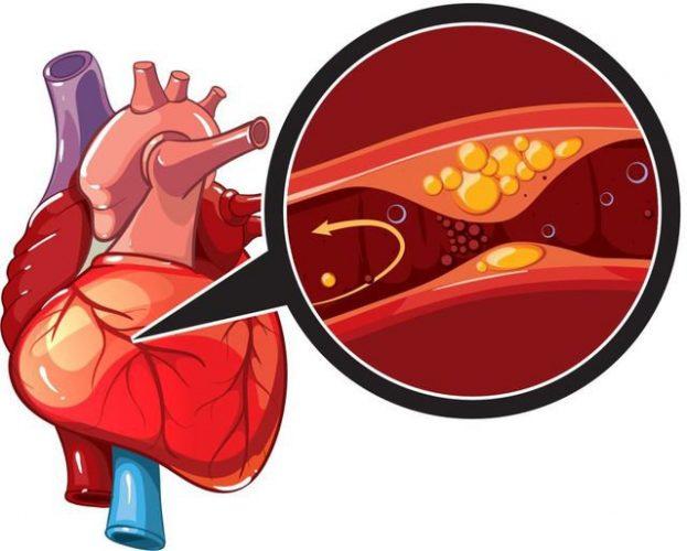 Bệnh thiếu máu sau sinh có chữa được không?