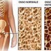 Không bổ sung canxi sau sinh, sản phụ có nguy cơ bị loãng xương cao